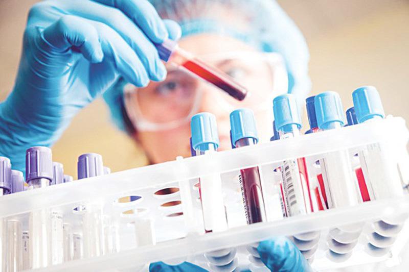 Cách nào giúp phát hiện bệnh buồng trứng đa nang