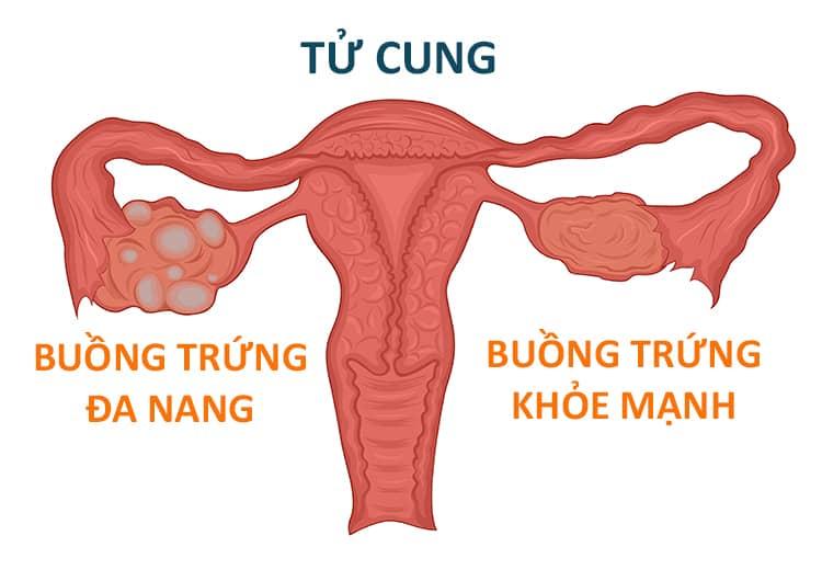 Nguyên nhân khiến nữ giới bị mắc buồng trứng đa nang
