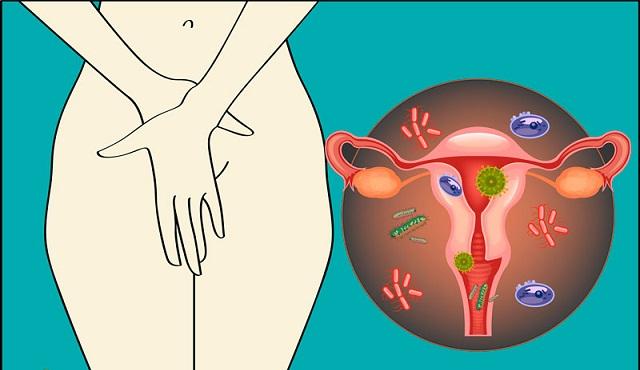 Nguyên nhân viêm âm đạo ở nữ