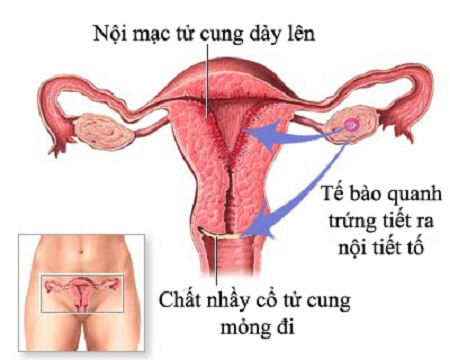 Nguyên nhân nào gây bệnh viêm nội mạc tử cung