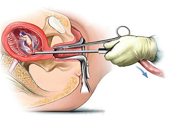 Phá thai an toàn là gì