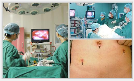 Tính năng ưu việt của công nghệ Wolf trong điều trị u xơ tử cung