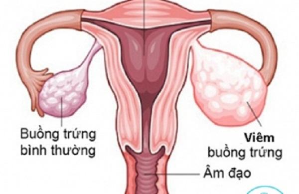 Viêm buồng trứng là bệnh gì