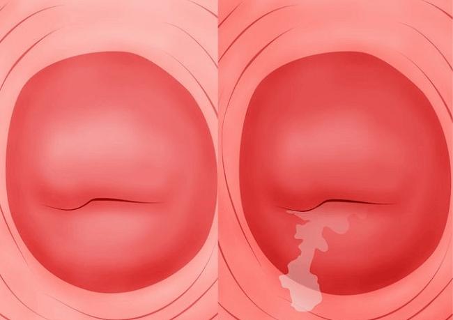 Bệnh viêm lộ tuyến cổ tử cung là gì