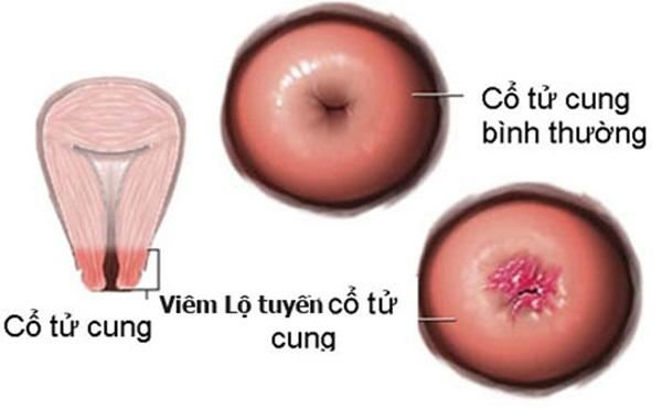 Viêm lộ tuyến cổ tử cung là gì