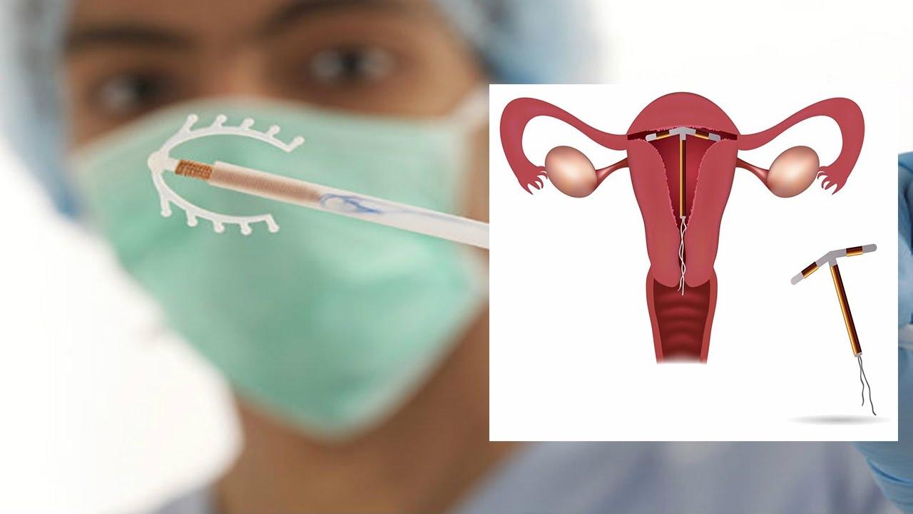 Địa chỉ đặt vòng tránh thai an toàn hiệu quả tại Bắc Ninh