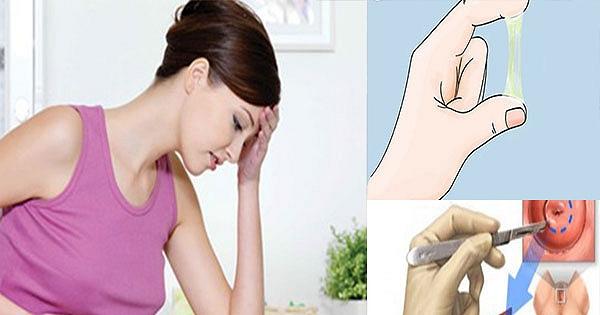 Những tác hại khôn lường của bệnh viêm lộ tuyến cổ tử cung