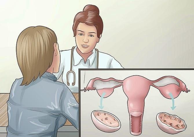Độ tuổi nào dễ bị mắc bệnh buồng trứng đa nang nhất