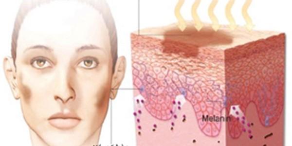 Biểu hiện của rối loạn nội tiết tố nữ sau sinh