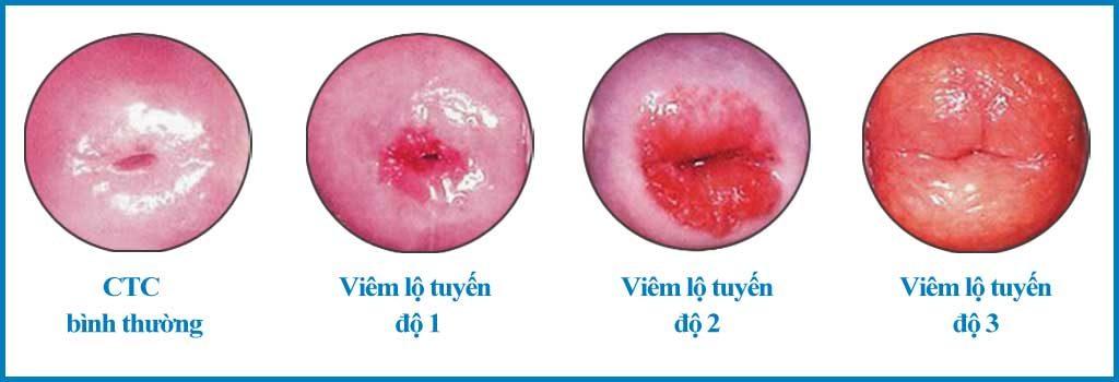 Các giai đoạn phát triển của viêm lộ tuyến cổ tử cung