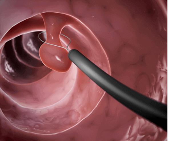Đốt và cắt polyp cổ tử cung có đau hay không