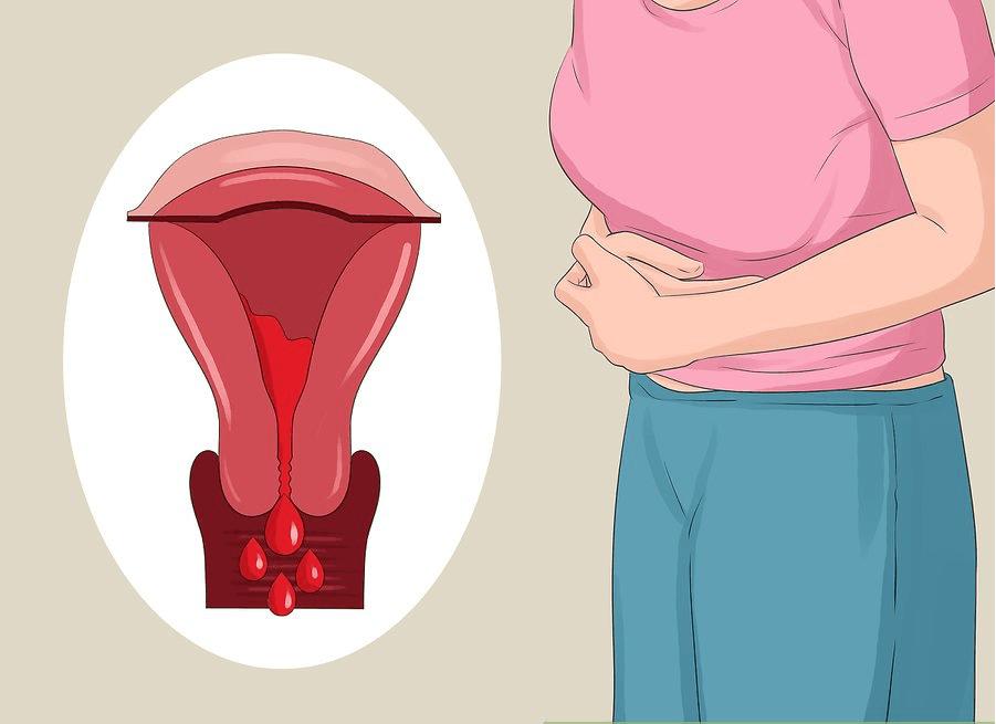 Tại sao sau khi phá thai nữ giới bị viêm nội mạc tử cung