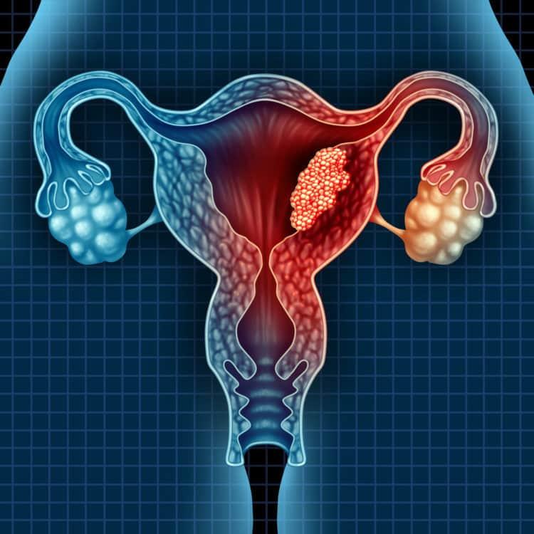 U nang buồng trứng phát triển qua những giai đoạn nào