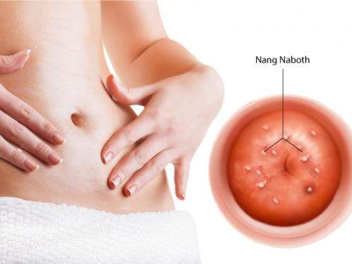 7 điều bạn cần biết về bệnh nang naboth cổ tử cung ở nữ giới