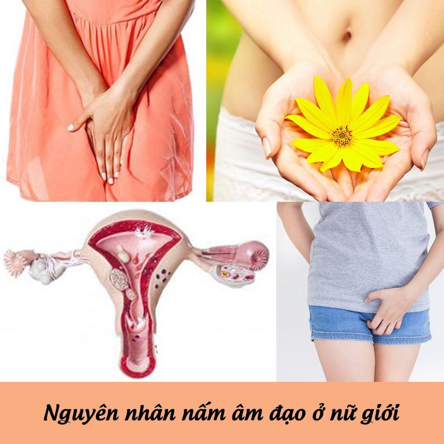 Nguyên nhân dẫn đến nấm âm đạo