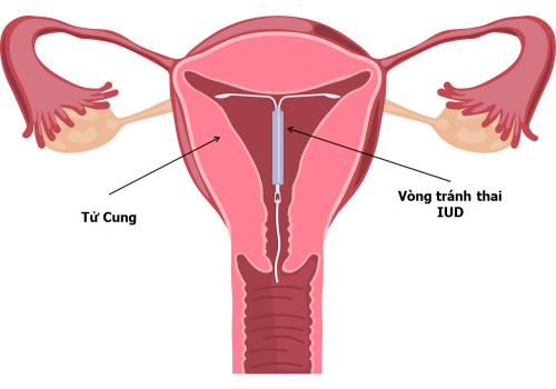 Đặt vòng tránh thai UID như thế nào
