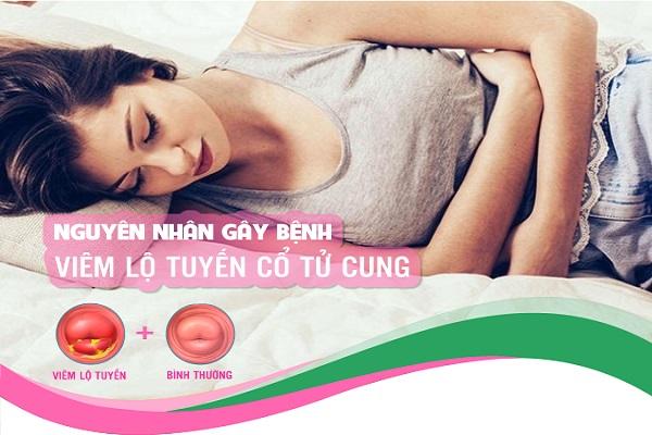 Nguyên nhân gây viêm lộ tuyến cổ tử cung ở nữ giới