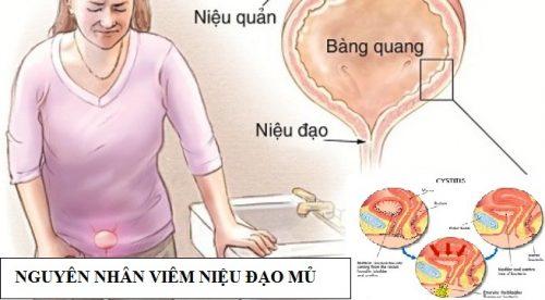 Nguyên nhân gây viêm niệu đạo mủ ở nữ giới