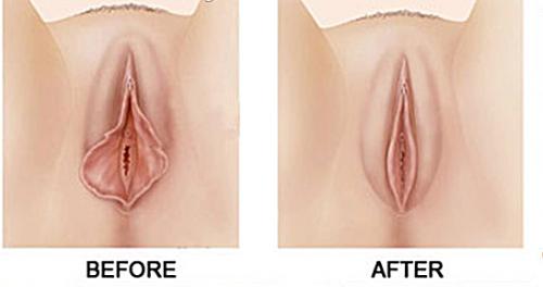 Hình ảnh trước và sau khi cắt môi bé