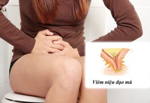 Viêm niệu đạo mủ ở nữ giới: Nguyên nhân dấu hiệu và cách điều trị