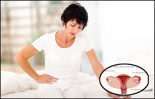 Viêm vùng chậu nguy hiểm như thế nào? Bị viêm vùng chậu có thai được không?