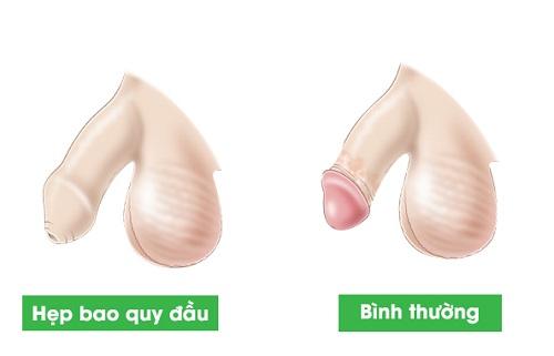 Hẹp bao quy đầu là gì? Nguyên nhân và cách điều trị